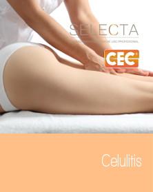 celulitis-222_279px